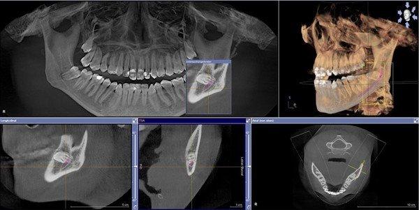 curriculum implantologie zahnmedizinische fortbildungen. Black Bedroom Furniture Sets. Home Design Ideas